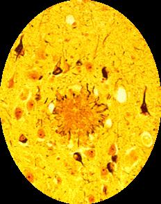 Alzheimer's Disease Brain - Senile Plaques Neurofibrillary Tangles - Pathalogical Hallmarks