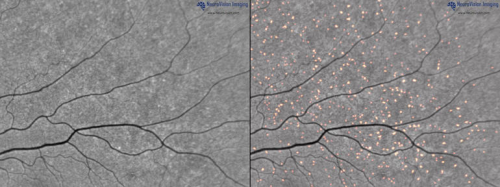 Amyloid Plaques in Retina