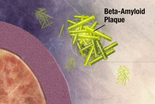 APP Beta-Amyloid Schematic Plaque Formation Aggregate