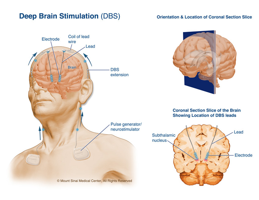 brain research paper Brain research publishes papers reporting interdisciplinary investigations of nervous system structure and function that are of general interest to.